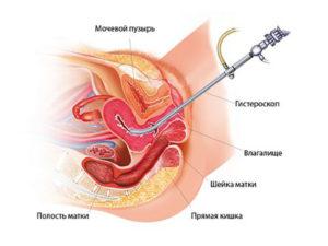 вакуум при замершей беременности