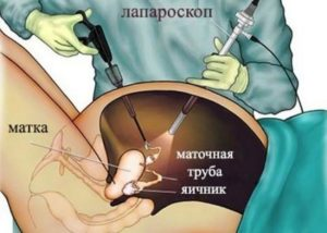 показания для лапароскопии