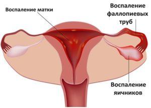 схема матки