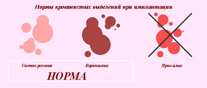 нормы кровянистых выделения