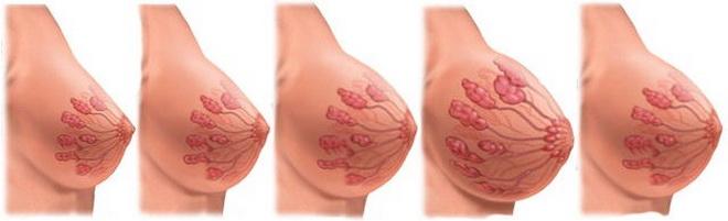 Болит грудь после зачатия