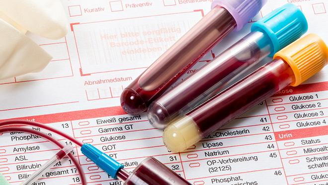 Когда анализ крови на ХГЧ покажет беременность