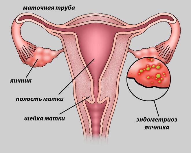 Дюфастоном можно вылечить эндометриоз Глория Мед