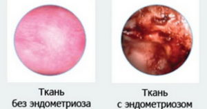 Признаки эндометриоза
