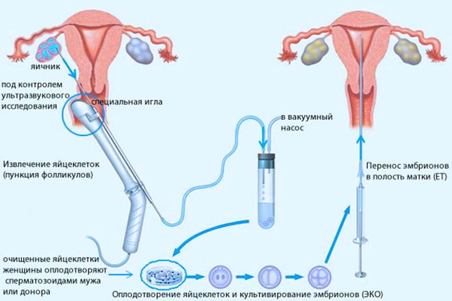 Стимуляция яичников