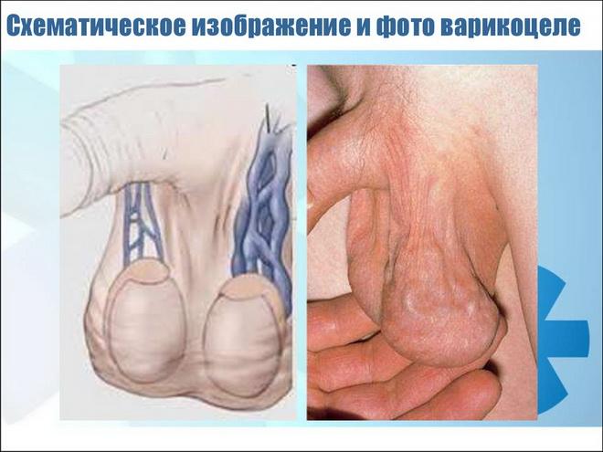 варикоцеле и бесплодие