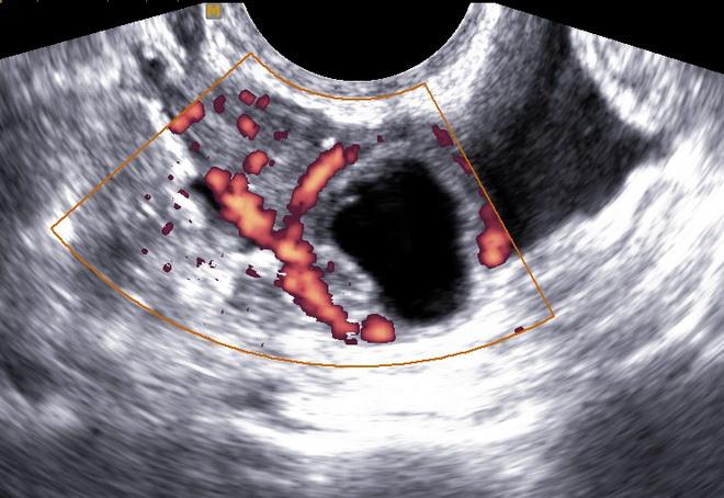 Внематочная беременность на УЗИ