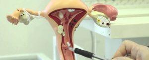 анатомическая модель матки