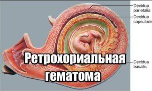 ретрохориальная